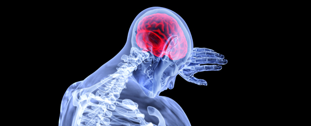 Head Games: Training the Neck to Reduce Concussions