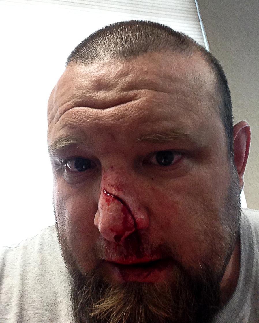 And Facial Disfigurement 15
