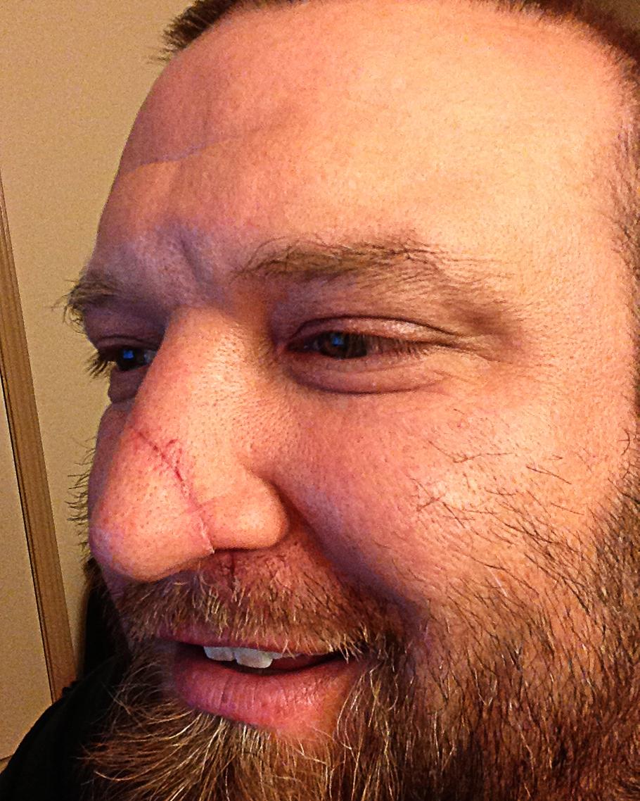 And Facial Disfigurement 77
