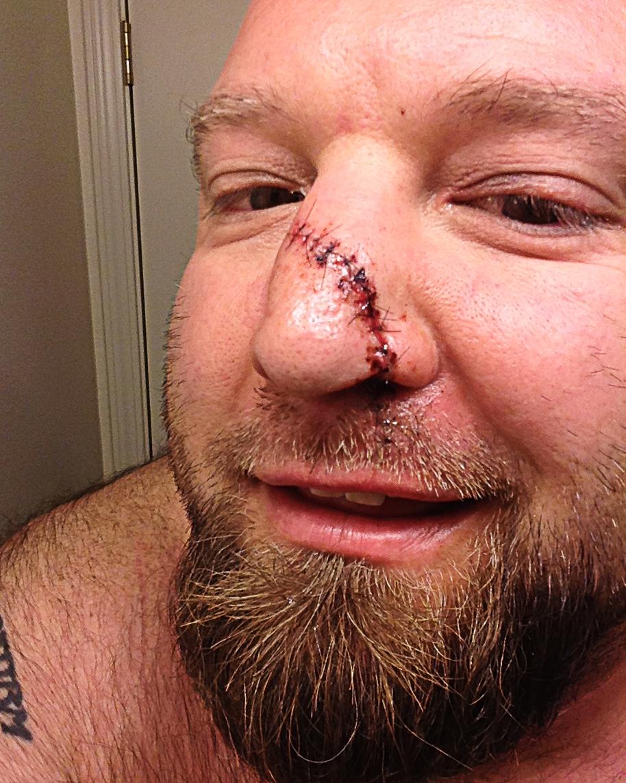 And Facial Disfigurement 109
