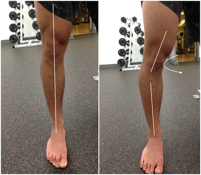 Build Your Arch Why Flat Feet Kill Your Squat Elite Fts