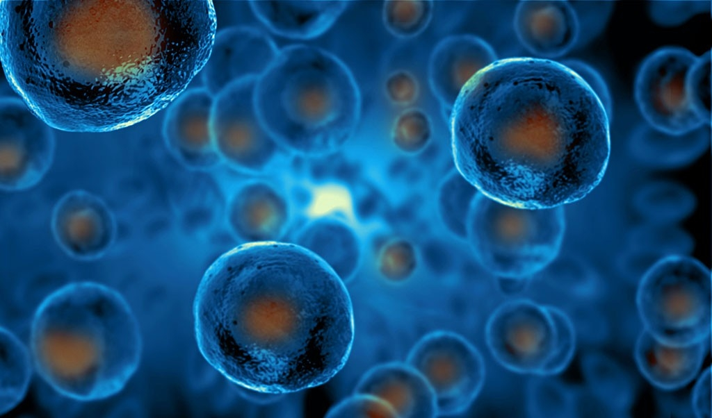 Out of options: Are stem cells the cure for Autoimmune