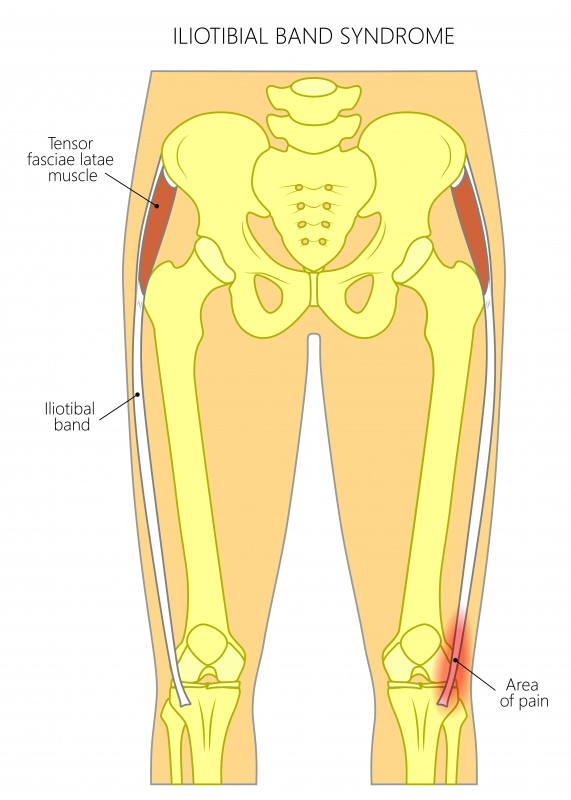 Pain in the hip joint_iliotibial band syndrome