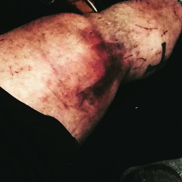 knee injury JM blakley